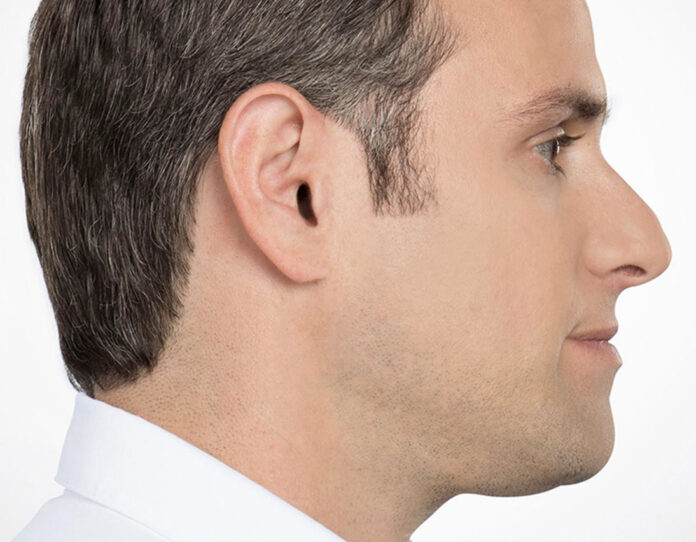 What the second chin looks like, side view