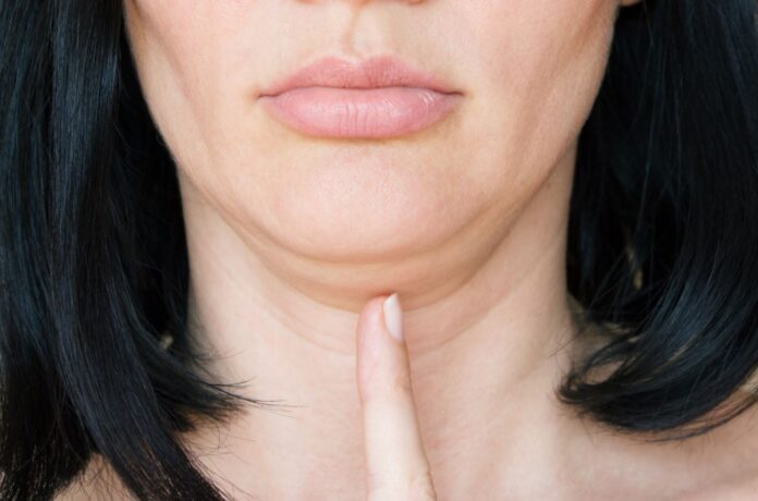 a picture of a woman's second chin