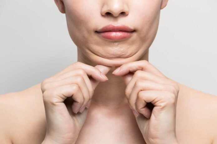 woman and the chin problem